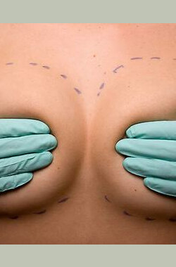 50 Greatest Plastic Surgery Shockers